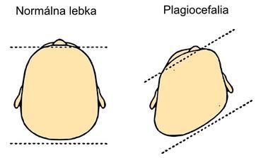 polohová plagiocefália