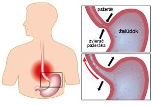 gastroezofagealny-reflux